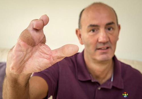HD Dedos do pé migram para a mão.jpg