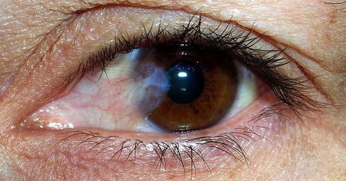 Cataratas nos olhos