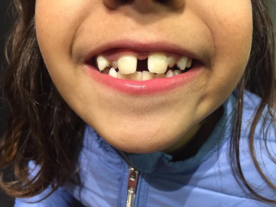 mada dentes 2:2.jpg