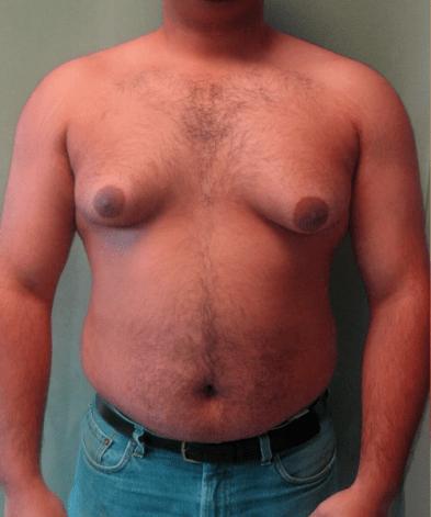Gynecomastia.png